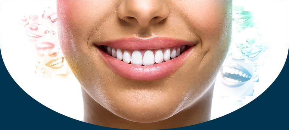 Única Odontologia | Clínica odontológica na região de Sorocaba