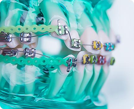 Única Odontologia | Tratamento- Reabilitação