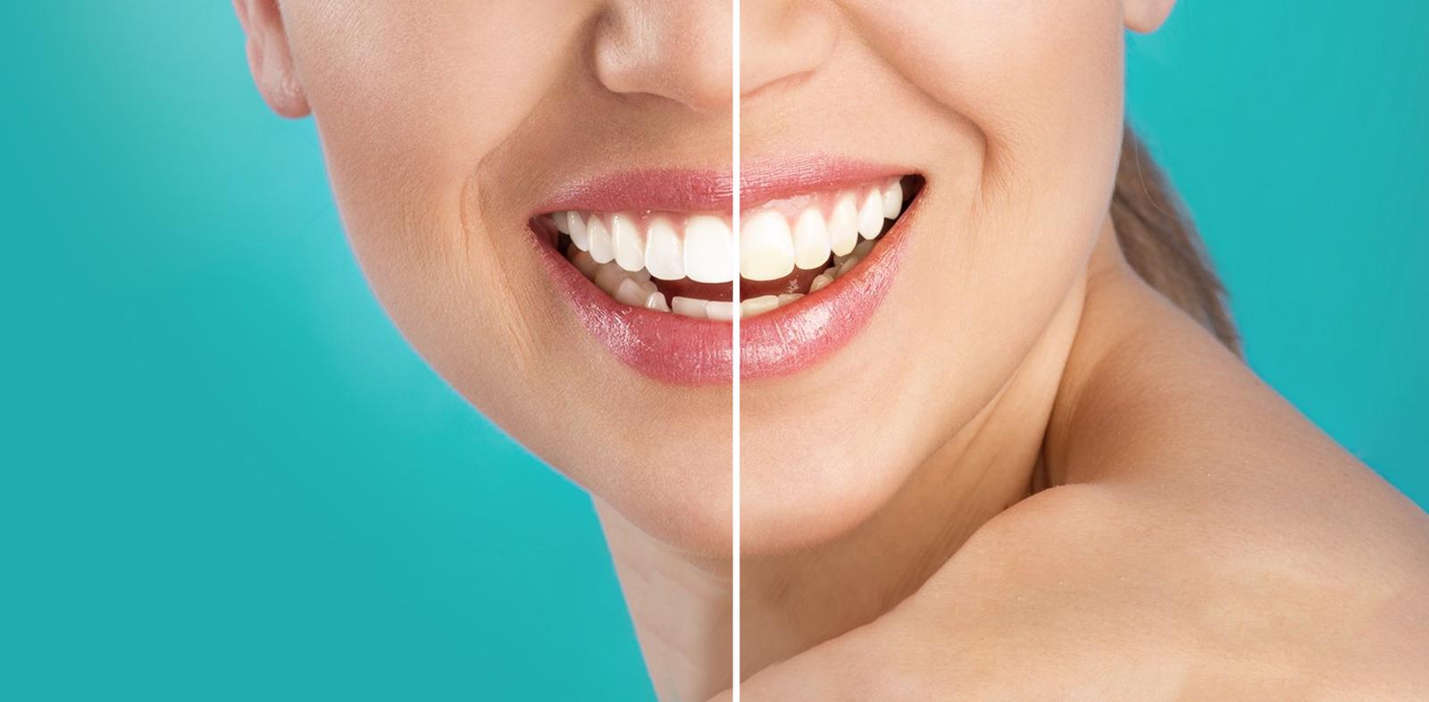 Clareamento dental: 7 vantagens de ir a uma clínica especializada