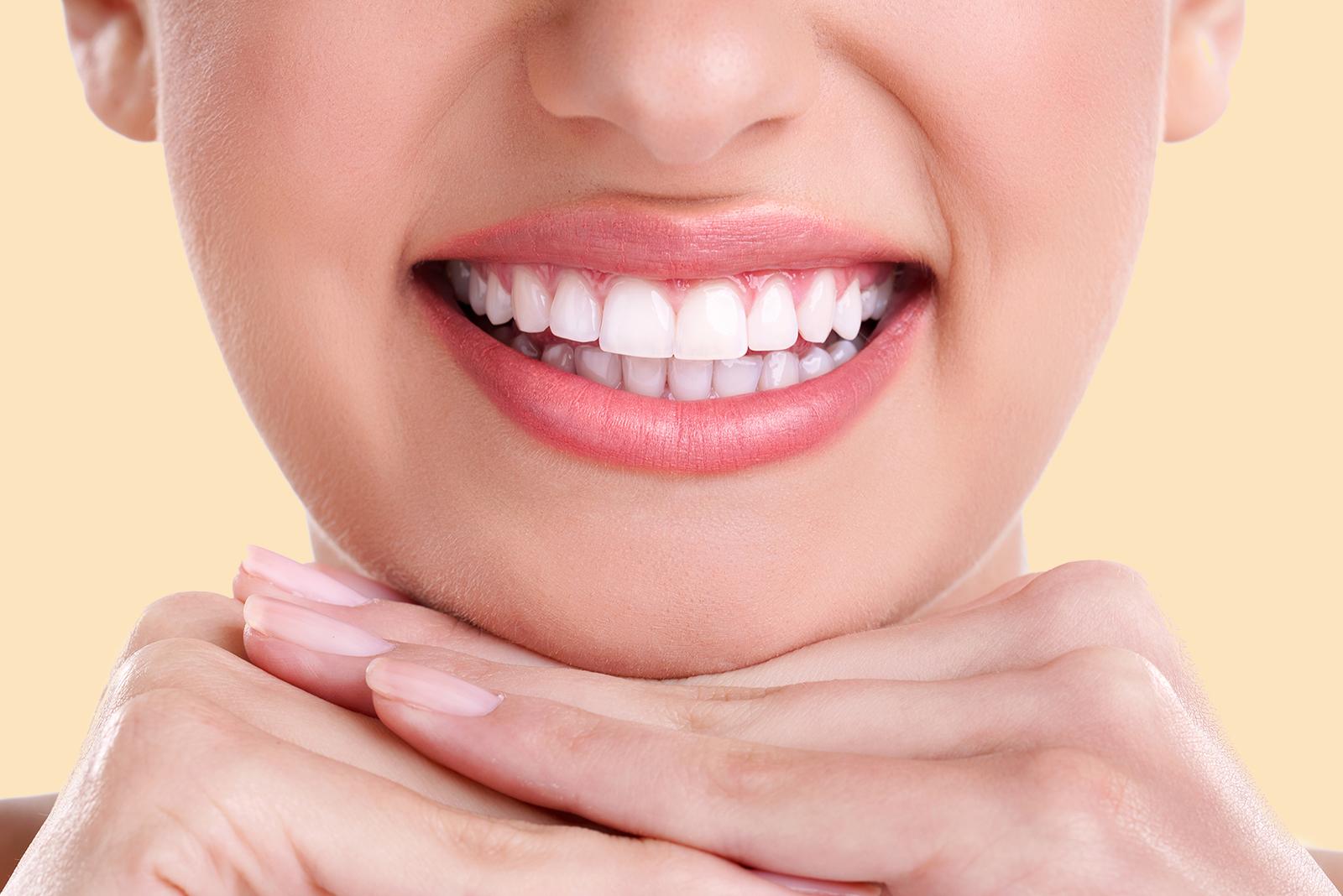 Lente de contato dental: como famosos cuidam de seus sorrisos perfeitos